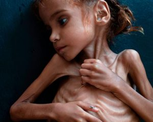 A dying girl who became a symbol of the Yemeni crisis is dying