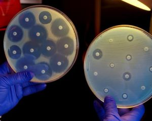 Superbugs kill 33,000 in Europe every year